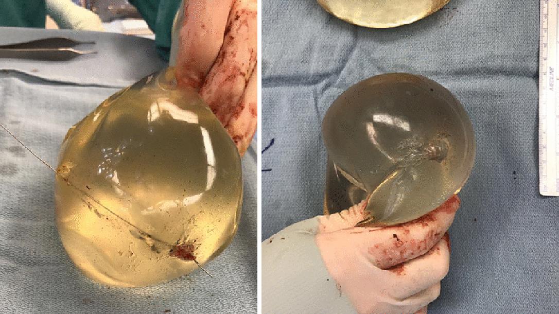 Breast Implant stops Bullet